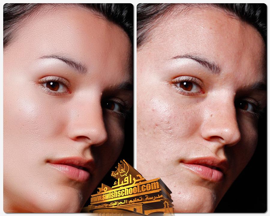 فلتر تحسين البشرة, فلتر لإزالة التشويهات من البشرة, فلتر فوتوشوب لإزالة حب الشباب, فلتر لإزالة الخدوش من الوجه