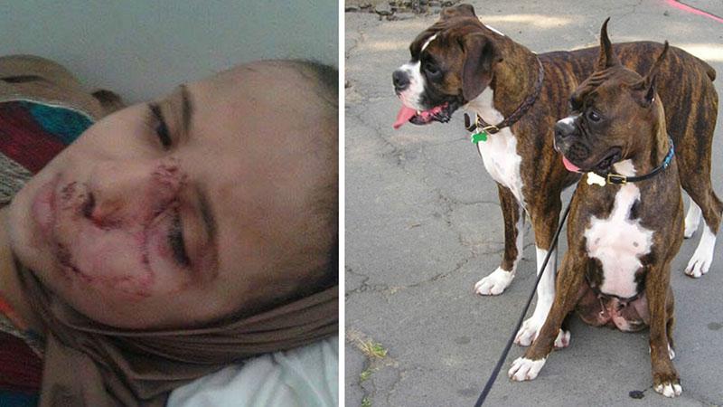 كلاب شرسة تشوه وجه طفلة أثناء عودتها من صلاة التراويح