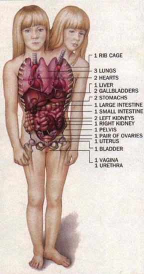 1508088156171 التوأم الملتصق برأسين وجسد واحد يعيشان حياه طبيعيه
