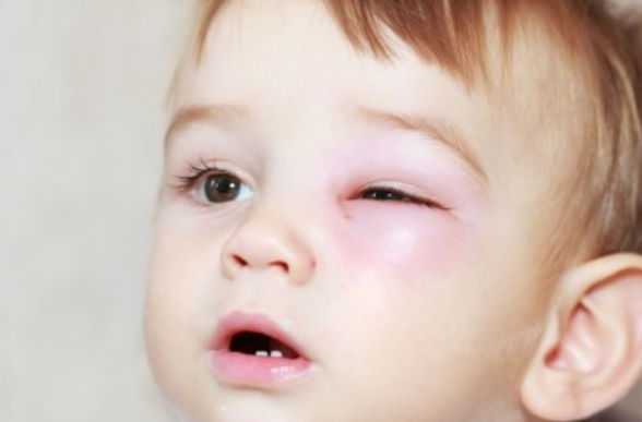 الاسعافات الاوليه عند اصابة العيون