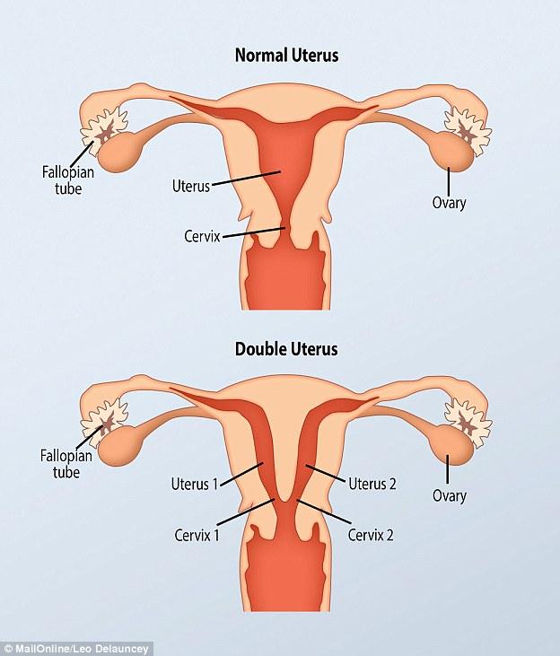 امرأة عندها رحمين و مهبلين و يمكنها الحمل مرتين في نفس الوقت