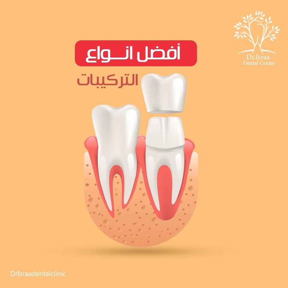 افكار اعلانات طبيب اسنان سوشيال ميديا 24 تصاميم سوشيال ميديا   طبيب اسنان