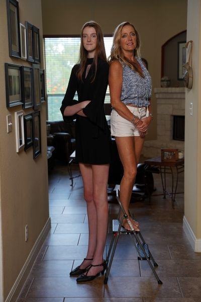 فتاه تدخل موسوعة غينيس لأطول ساقين لمراهق في العالم 5 فتاه تدخل موسوعة جينيس لأطول ساقين لمراهق في العالم